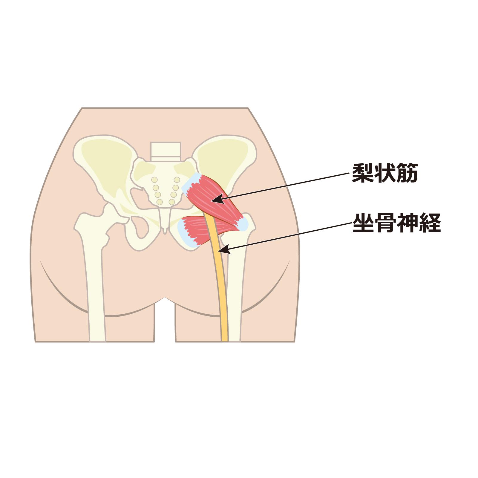 坐骨 神経痛 中 妊娠